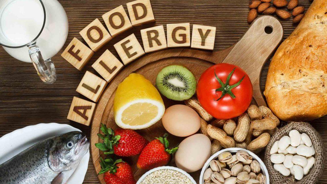 خوراکیهای آلرژیزا